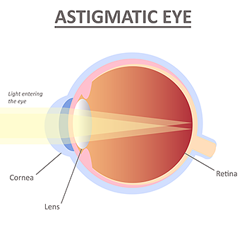 astigmatism Astigmatic Eye Illustration Refractive Errors Asia Pacific Eye Centre APEC