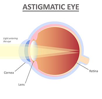 astigmatism Astigmatic Eye Illustration Refractive Errors Asia Pacific Eye Centre APEC