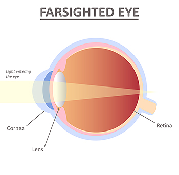 Farsighted Eye Hyperopia Lee Hung Ming Eye Centre RS v2