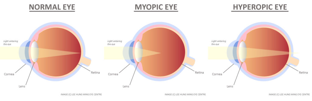 myopia mínusz 5 kezelés