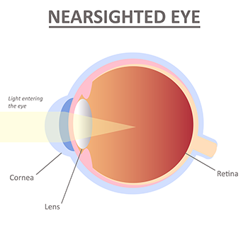 Nearsighted Eye Myopia Lee Hung Ming Eye Centre