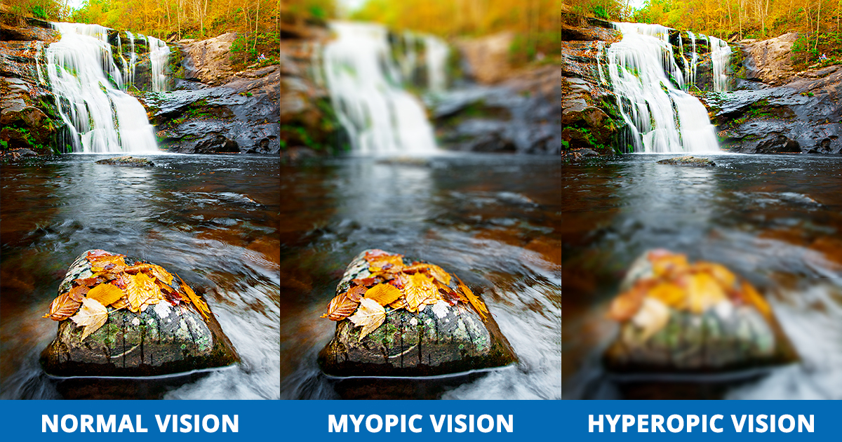 Refractive-Errors-Normal-Vision-Myopia-Hyperopia-Visual-Simulation