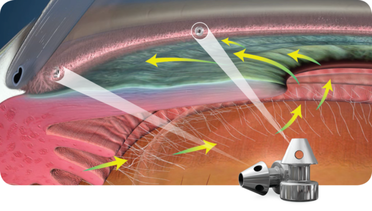 Glaucoma iStent Inject Process Animation
