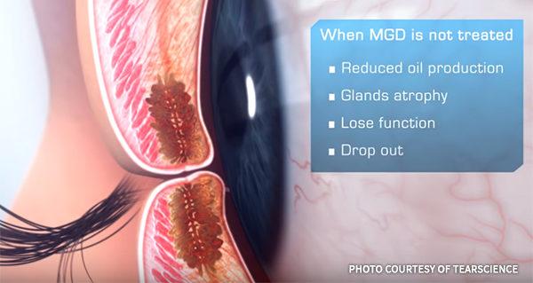 Lipiflow Treatment Meibomian Gland Dysfunction Meibomian Gland Atrophy Tear Science Asia Pacific Eye Centre APEC