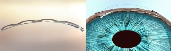 MIGS Stents for Glaucoma