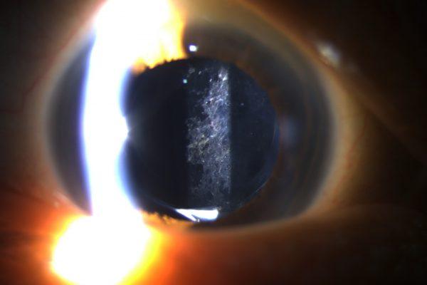 Posterior Capsule Opacity PCO Cataract Asia Pacific Eye Centre APEC (2)